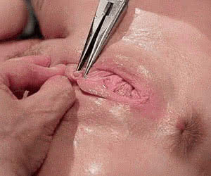 Category: pain and torture animated GIFs